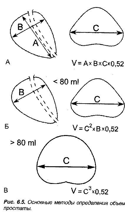 Посчитать объем простаты по размерам